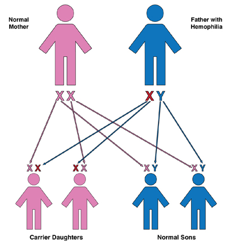 How Hemophilia is Inherited > Genetics > HoG Handbook > Hemophilia ...