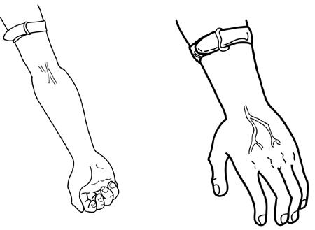 Step 14: Choose a vein > Infusing Factor > Treatment > HoG